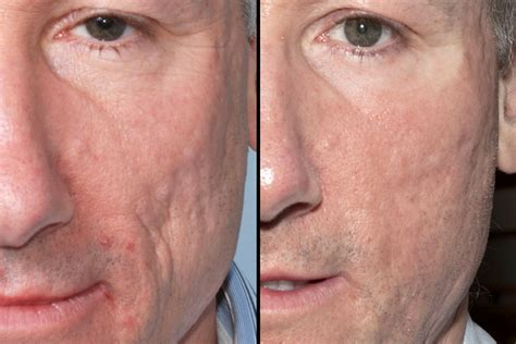 acne scarring treatment picture 13