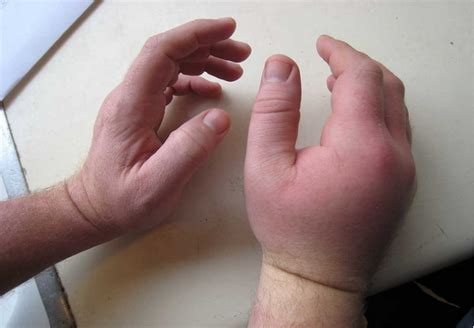 body cleanse swollen fingers picture 6
