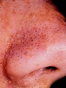 acne remover picture 7