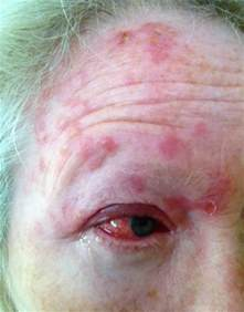 shingles herpes zoster picture 3