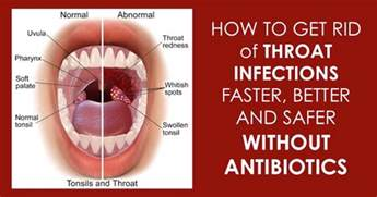 throat infections picture 3