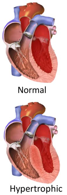 centimeter thickening of heart muscle picture 3