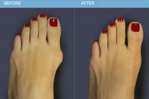 can they put you asleep for bunion surgery picture 2