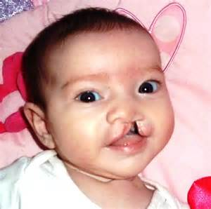 pictures of cleft lip and pallate picture 6