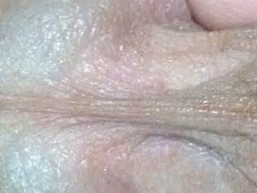symptoms of herpes of the tongue picture 18