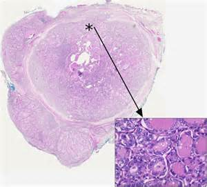encapsulated papillary thyroid cancer picture 2