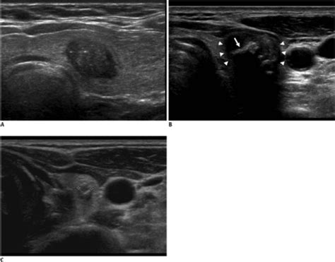 calcifications in thyroid nodules picture 11