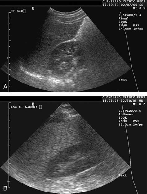 abdominal ultrasound and elevated liver enzymes picture 12