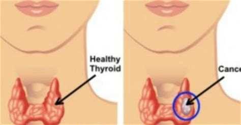 ear pain and underactive thyroid picture 10