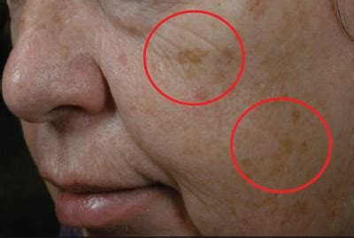 freezing liver spots at home picture 5