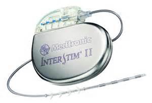 implanted bladder stimulation for urine retention picture 11