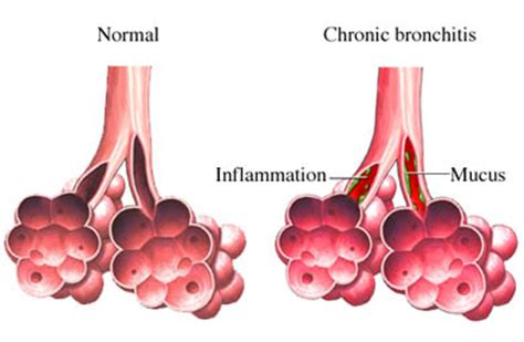 can you get chronic bronchitis if you don't smoke picture 6