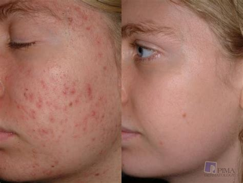 aldactone and acne picture 11