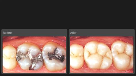 filling cavities in wisdom h picture 1