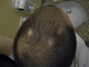 what doctor do i see about losing my hair picture 5