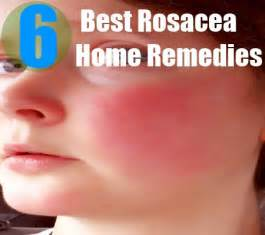 herbal remedies toothache picture 3