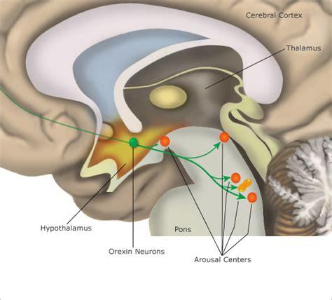 what is cerbvas disease picture 14