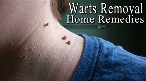 warts removal picture 6
