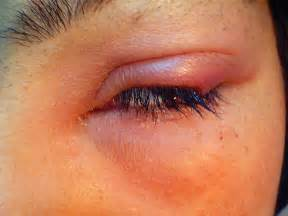 yeast infection in eyes picture 7