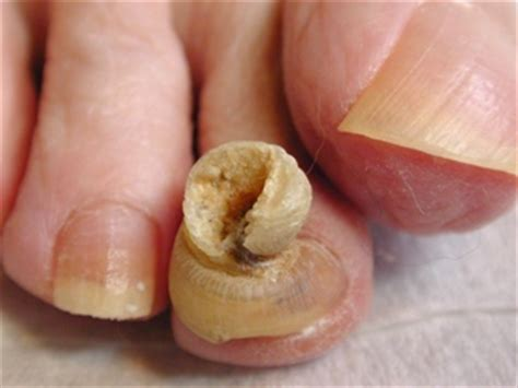 nail fungus therapy picture 2