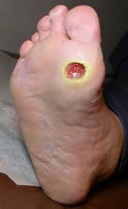 does heel ulcers heal on diabetics picture 14