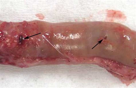 colon perforation picture 1
