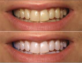 before and after h whitening picture 9