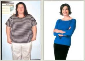gastric bypass weight loss surgeries picture 7