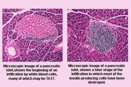 herbs that help in pancreatic beta cell neogenesis picture 6