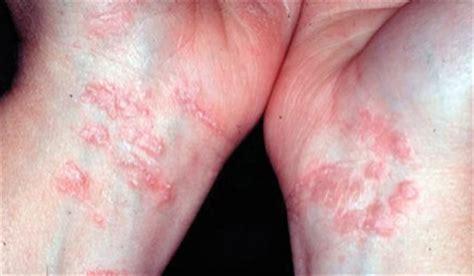 genital skin lesion picture 9