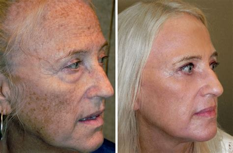 what is strongist face laser treatment in 2014 picture 3