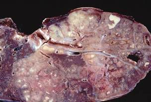 daily toxicology hoodia picture 9