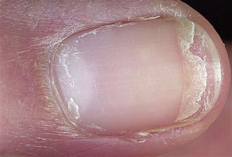 can candida cause toenail fungus picture 13