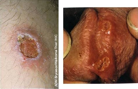 chafing penile skin herpes picture 3