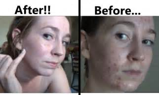 extamax before and after pictures picture 10