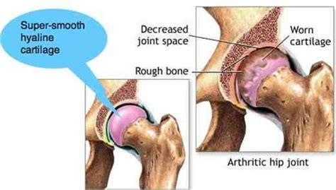 chronic pain in the hip joint picture 3