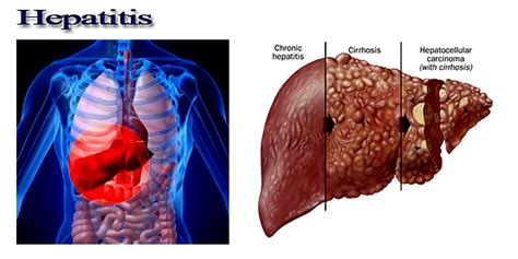 liver damage signs and symptoms picture 14