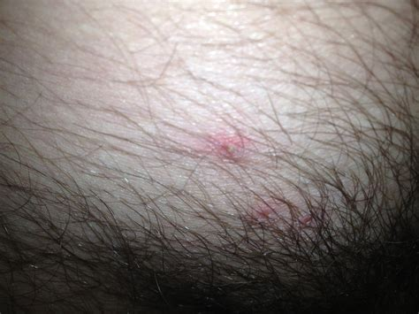 acne in groin area women picture 9