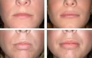 lip augmentation permanent safe fda picture 15