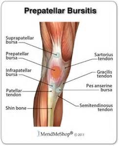 pain just right of knee cap picture 18