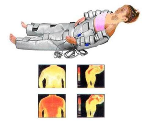 cellulite what is infrared heat picture 1