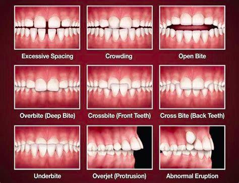 overbite teeth picture 2