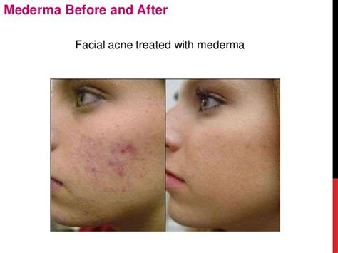 acne and pregnancy picture 2
