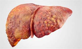 what can cause liver damage picture 5