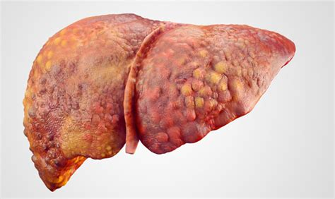 damage to human liver from mold picture 16