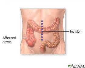 lower left intestinal pain picture 6