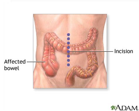 colon polps picture 7