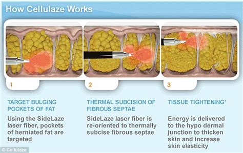 fast temporary cellulite treatment preparation h picture 11