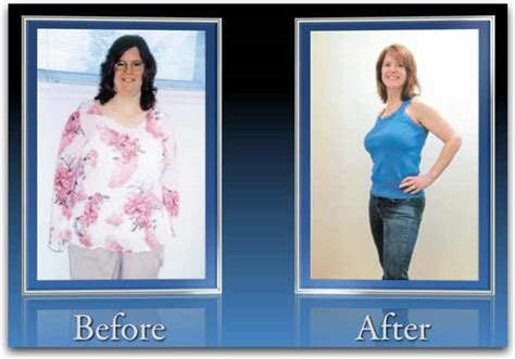 weight loss after lexapro picture 10