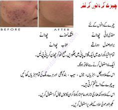 acne scars treatment homemade by khurrum in urdu picture 3